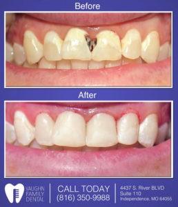 cosmetic bonding tooth colored fillings vaughn family dental