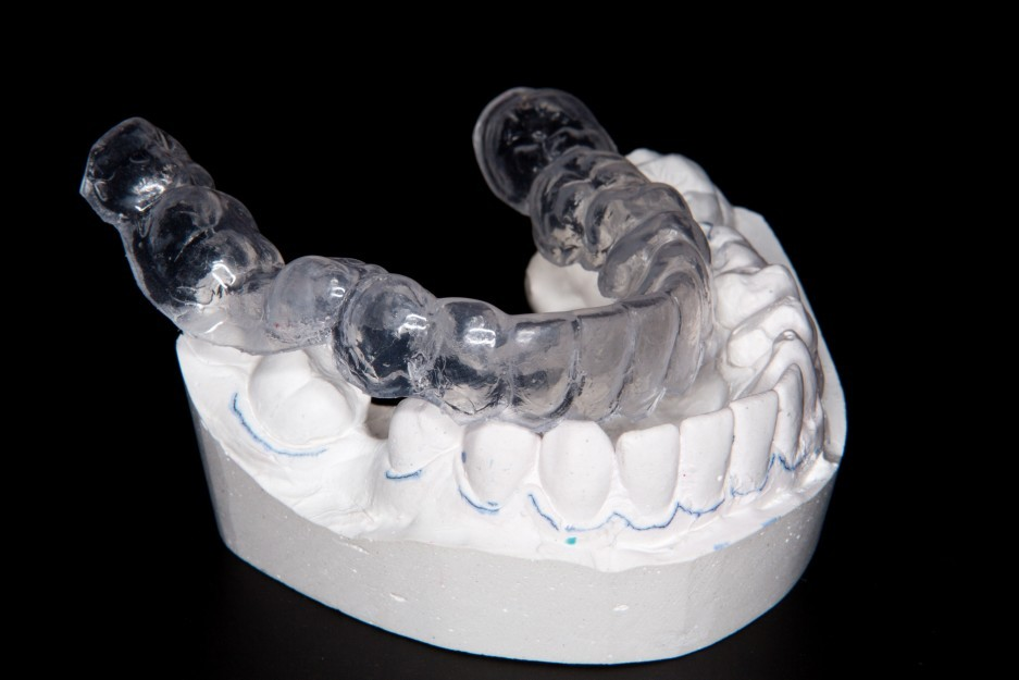 teeth-whitening-mouth-guard-Vaughn-Family-Dental-Best-Dentist-in-Independence-Missouri-MO