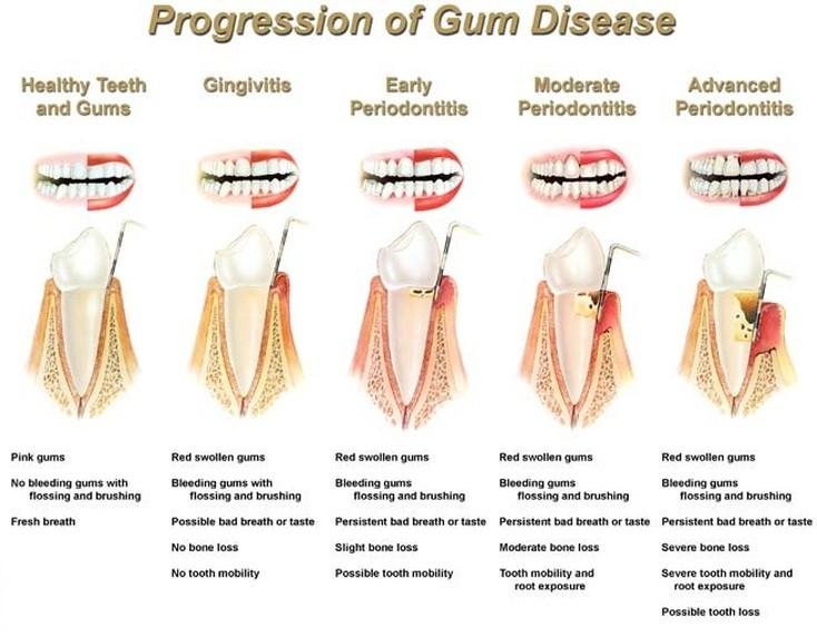 progression-of-gum-disease--Vaughn-Family-Dental-Best-Dentist-in-Independence-Missouri-MO